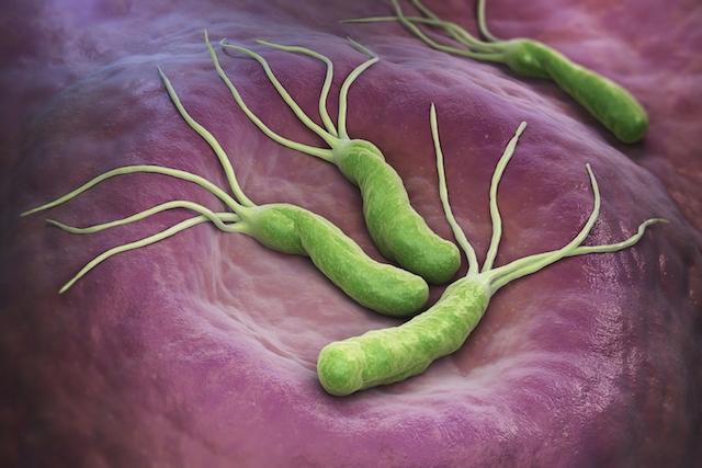 Helicobacter Pylori - Diario Puerto Varas